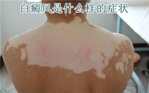 导致背部白斑的原因有哪些