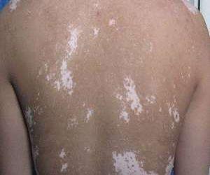 皮肤白斑是怎么出现的